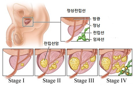 Stages-of-Prostate-Cancer.jpg